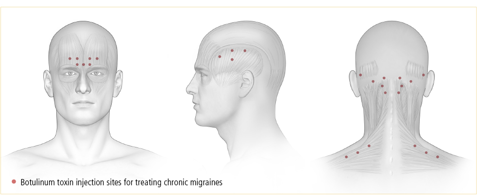 botox for migraine treatment