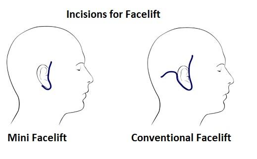face lift.jpg