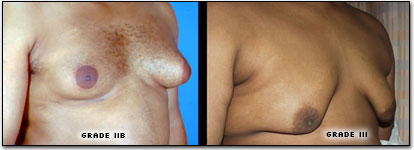 male breast enlargment cyprus.png