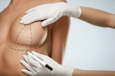 Breast lift | Mastopexy