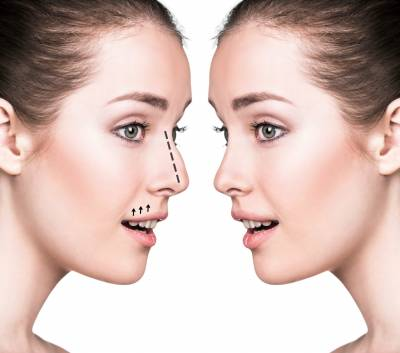Nose Surgery Procedure